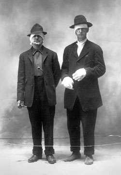 1910 burn victims